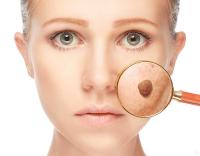 Кератомы на лице