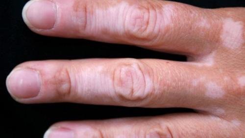Белые пятна на руке