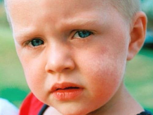 Белые пятна на щеке ребенка
