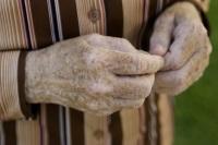 Гиперпигментация кожи у пожилых людей