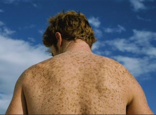 Гиперпигментация на спине