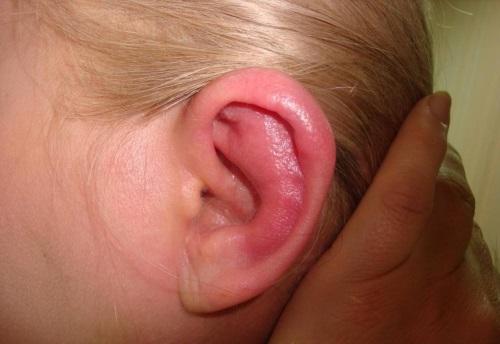 Красные пятна в области ушей