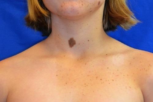 Пигментные невусы кожи