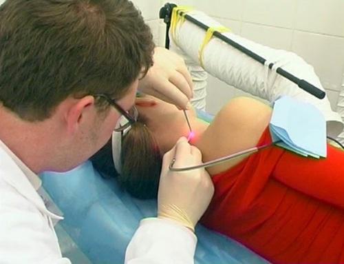 Процедура удаления родинки в больнице