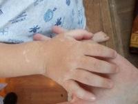 У детей на руках белые пятна